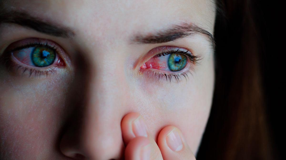 Olhos cansados: principais sintomas e o que fazer?