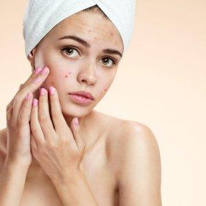 Tratamentos naturais para curar a acne